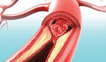 Beneficios-Triglicéridos-Omega3